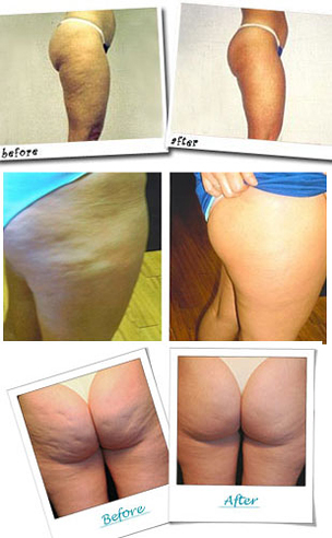 revitol-cellulite-cream-before-after-image