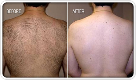 Revitol Hair Removal Reviews Painless Hair Removal Cream