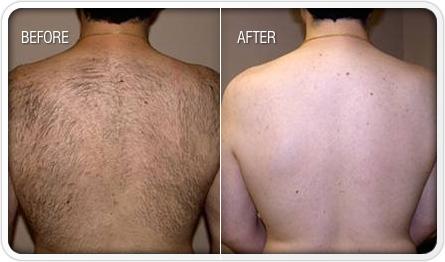 revitol-hair-removal-cream-reviews