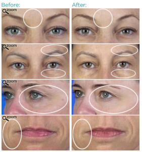 hydroxatone-before-after, anti wrinkle cream, skin firm, skin care products, aging skin care
