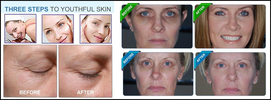 leor-skin-care-results