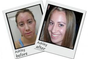 Exposed Skin Care Pros