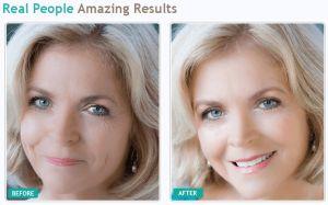 RejuveTX Facial Serum Review