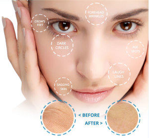 bellavei-wrinkle-reducer-side-effects