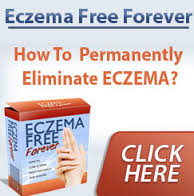 How to Get Rid of Eczema?