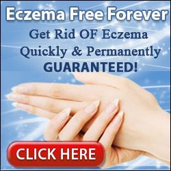 Eczema Free Forever Pros