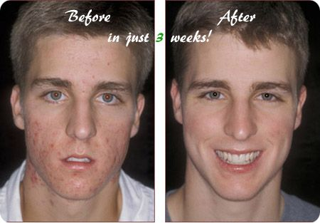 Acne No More Program