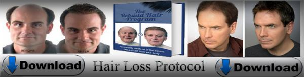 Hair Loss Protocol Pros