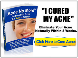 Mike Walden Acne No More