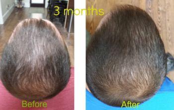 Hair Loss Protocol Reviews