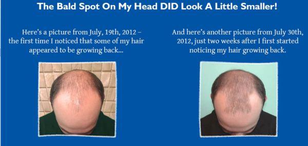 Hair Loss Protocol 101