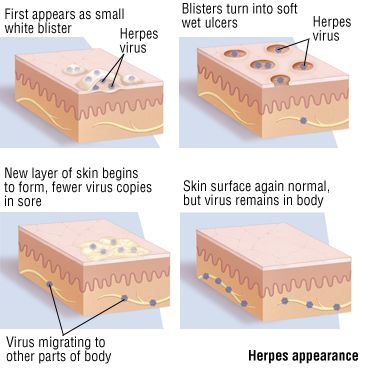 What is the Ultimate Herpes Protocol?