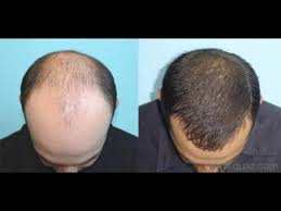 Does Hair Loss Protocol Work?