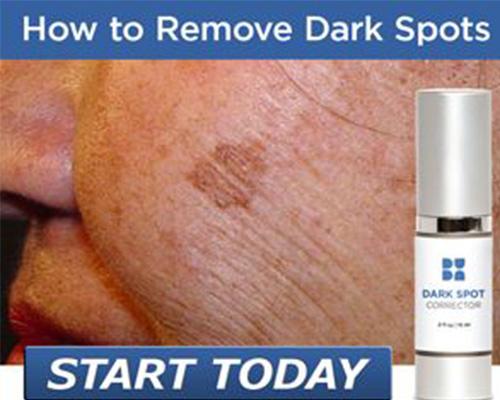 Beverly hills md dark spot corrector reviews clearer skin fast