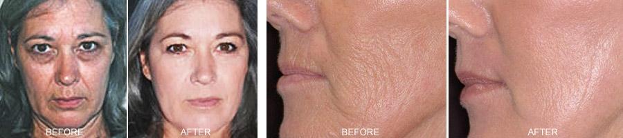 Bellaplex wrinkle reducer