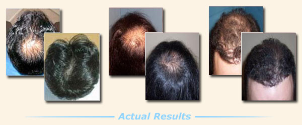 Provillus Reviews Hair Regrowth Treatment At Home Ixivixiixivixi