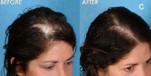 Does Just Natural Hair Loss Treatment Reviews
