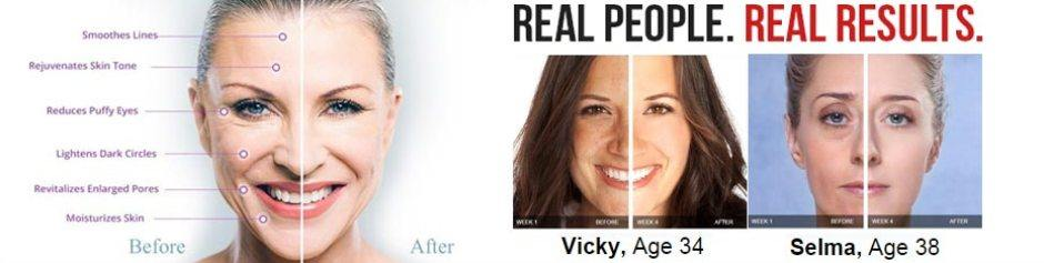 Derma Promedics Anti-Wrinkle Review