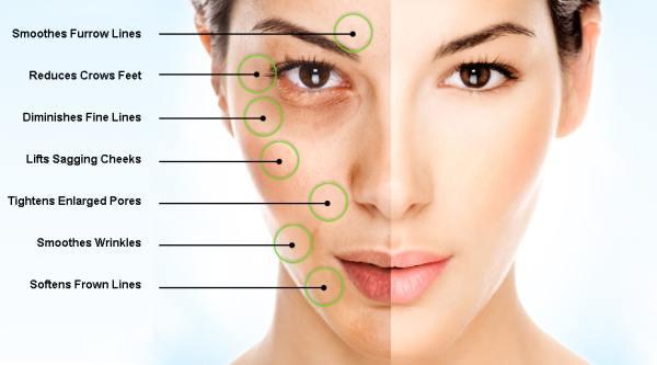 Lift Skin Face Naturally