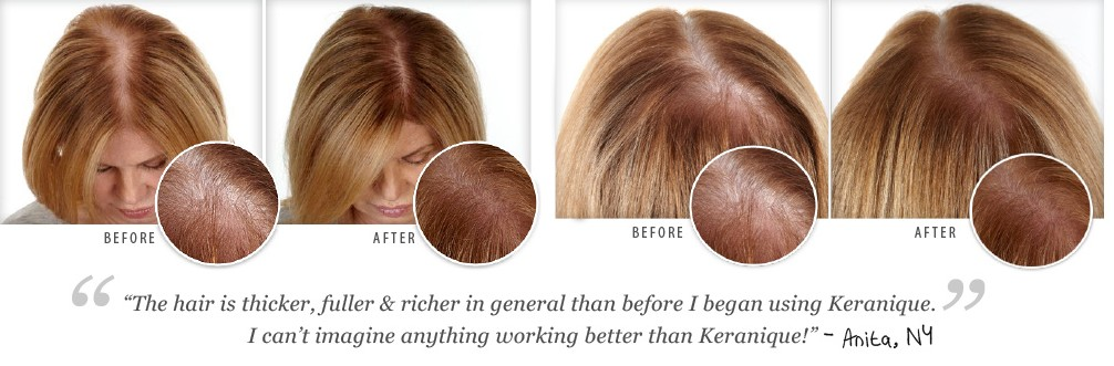 keranique-hair-regrowth-treatment-benefits